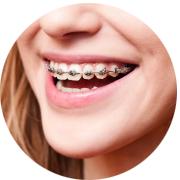 oferta-ortodoncja-aparat
